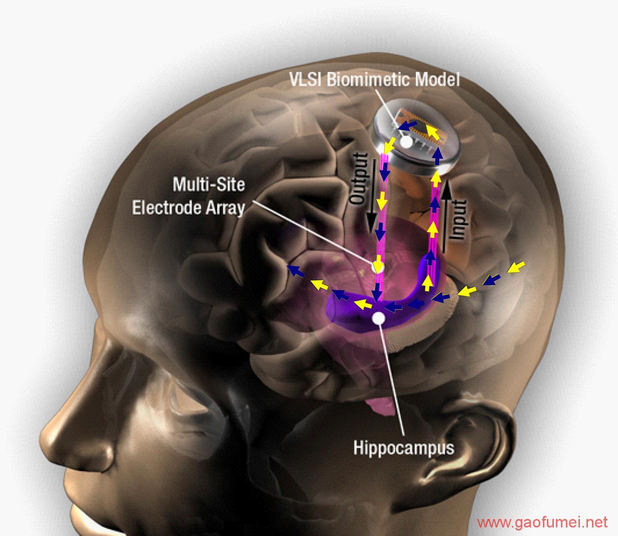南加州大学研发大脑植入物可提升30%记忆力