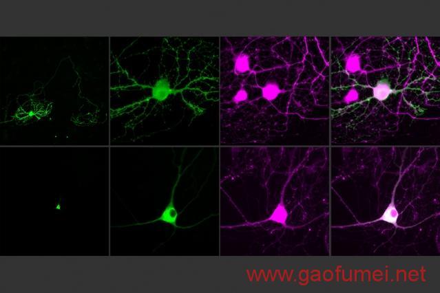 MIT用光操控单个神经元距离解析大脑还有多远