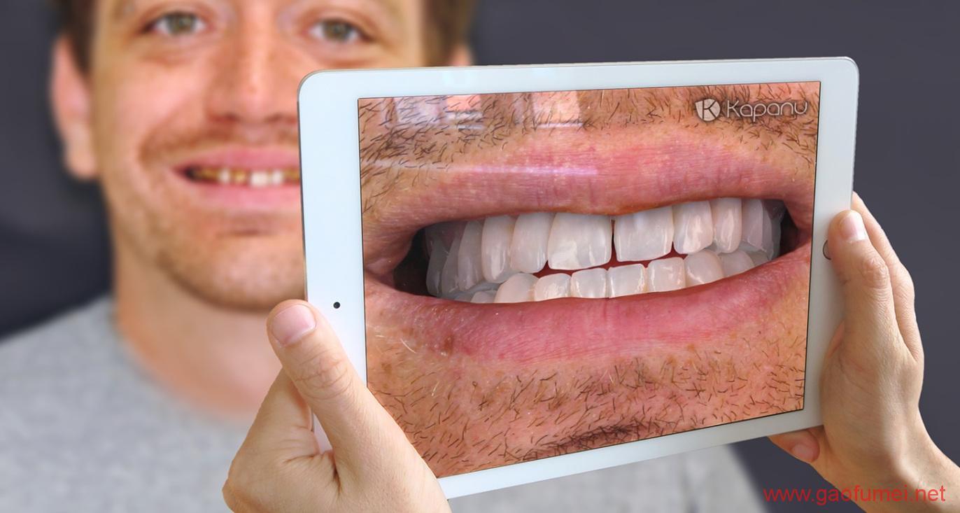 Ivoclar Vivadent完成对Kapanu的收购牙齿美容效果即时呈现