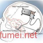 癫痫治疗创企NeuroPace获7400万美元投资首个被FDA批准的脑内神经治疗装置
